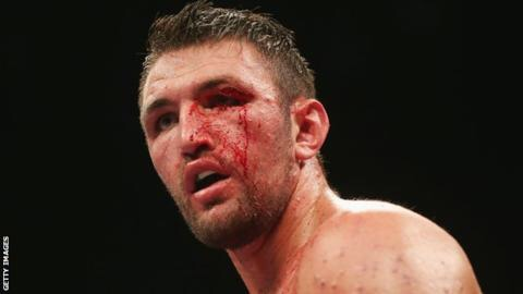 Hughie Fury Loses Again – Levels to Boxing